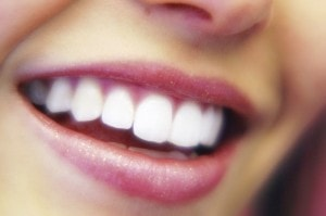 Perfectly contoured gums with your cosmetic dentist for Fairfax VA