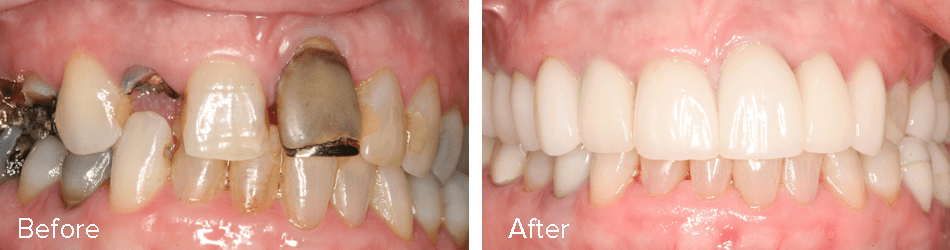 alexandria-cosmetic-dentistry-gallery-case4-full-mouth-rehab