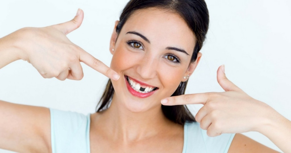 Woman with great smile ruined by missing tooth