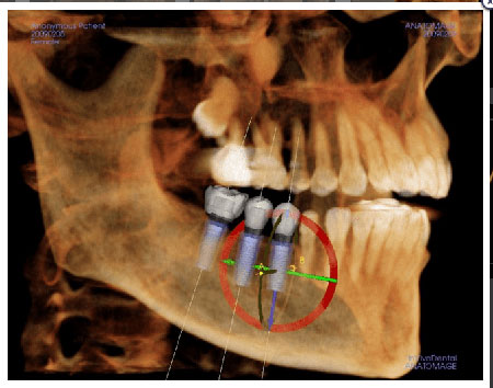Cone Beam CT Guided Implant image