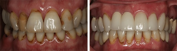 Image of cosmetic dentistry candidate with Dr. McMillan