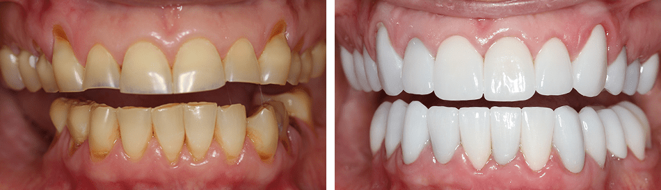 Before and after photo of Dr. McMillan's patient in Burke VA
