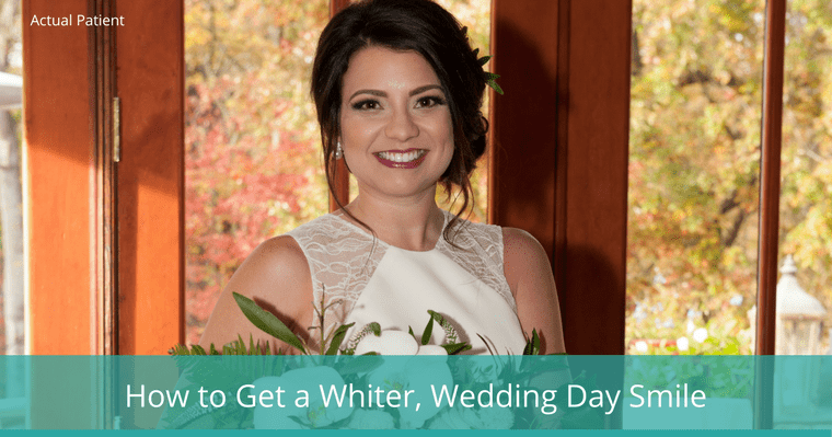 Get a Whiter Wedding Day Smile with KöR Whitening