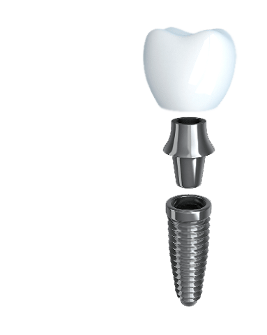 Anatomy of a dental implant: post, abutment, and crown
