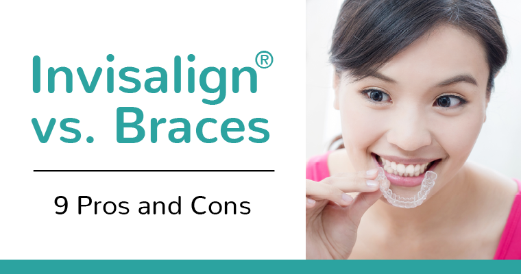 Invisalign vs. Braces - 9 pros and cons - A young woman inserting an Invisalign teeth straightening tray into her mouth