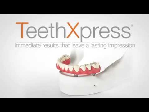 Cover image with TeethXpress logo